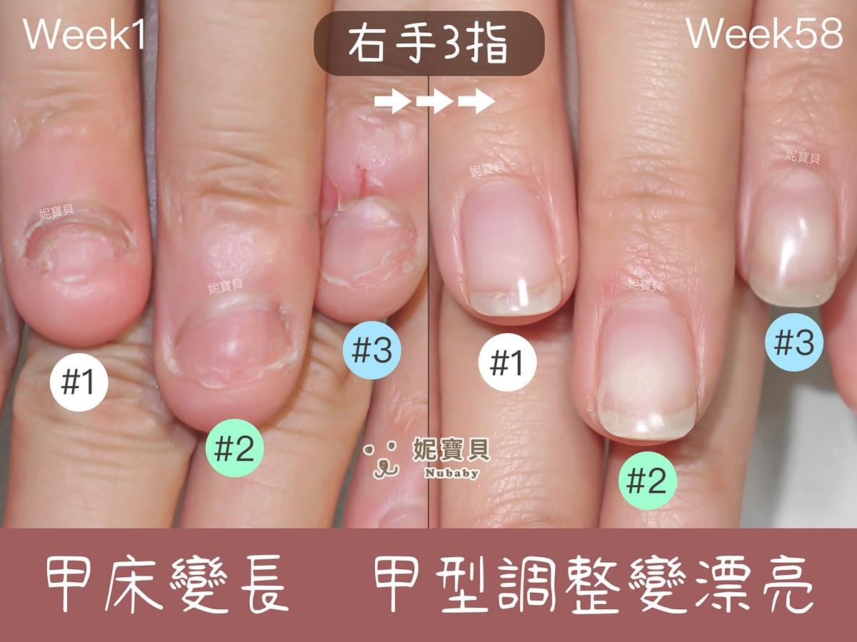 指甲快沒了 嚴重摳咬指甲 凝膠保護後指甲重長