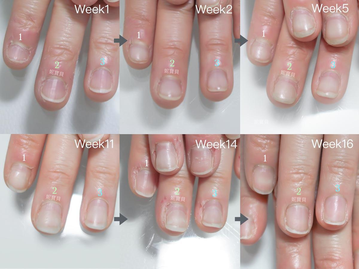 甲床內縮 指甲短 16週慢慢長出正常指甲