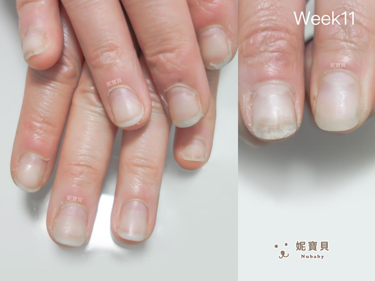 指甲短 16週慢慢長出正常指甲