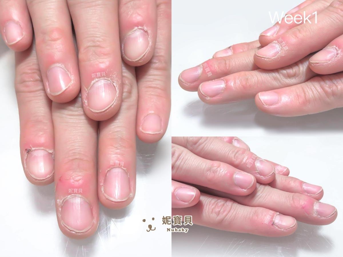 指甲歪歪 矯正後 甲型變整齊 修長 比例好