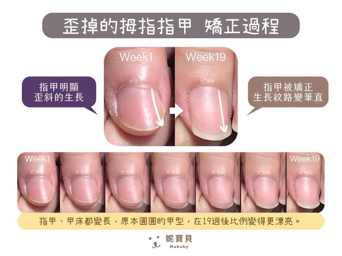 指甲長很慢 矯正過程中發現指甲長不長的原因