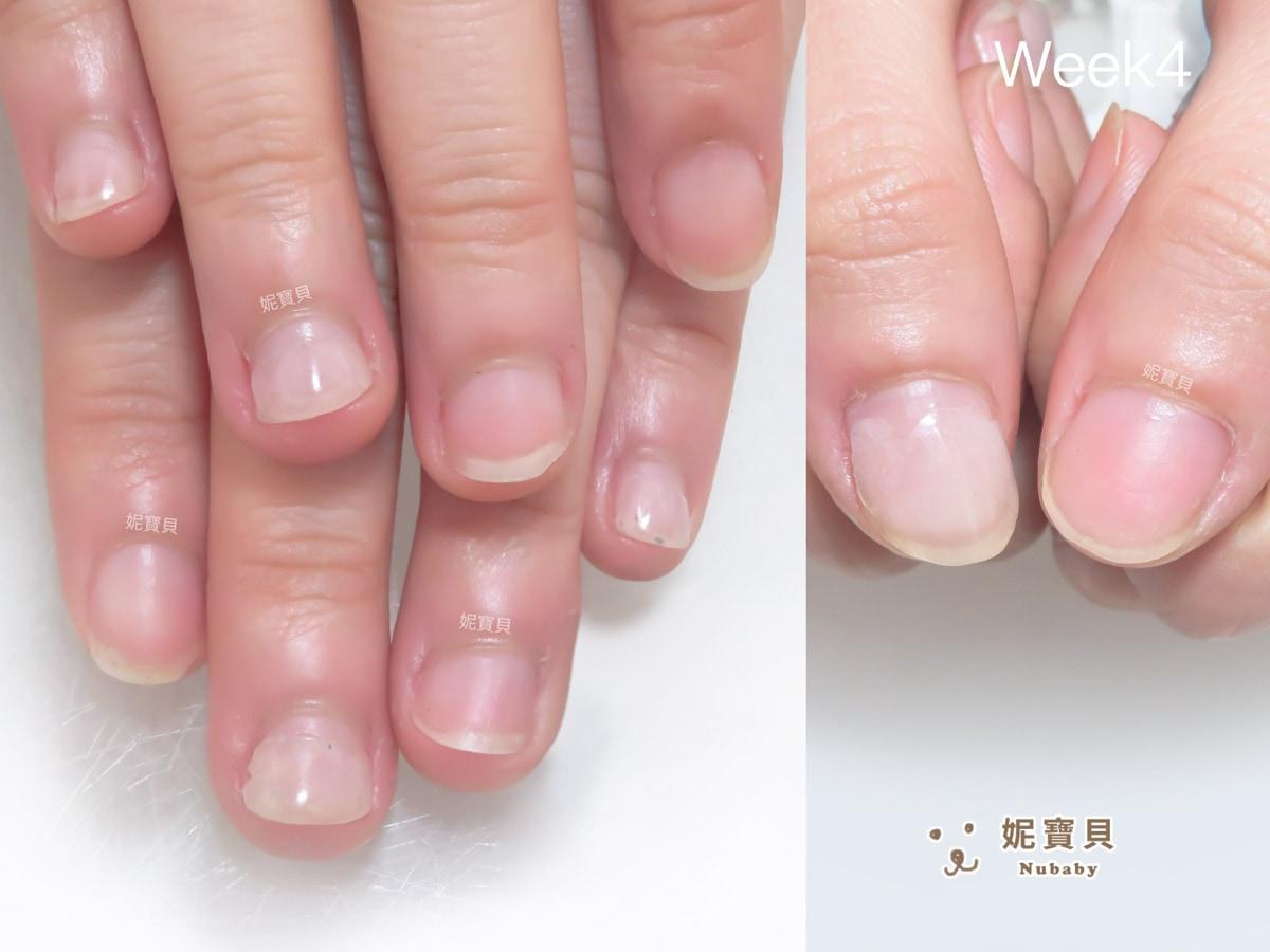 矯正過程中發現指甲長不長的原因