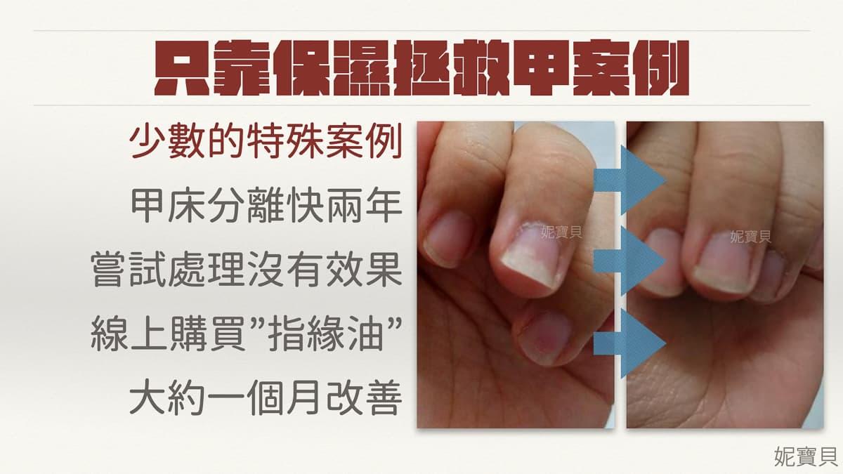 處理問題指甲-不做水晶或凝膠有辦法矯正指甲嗎?