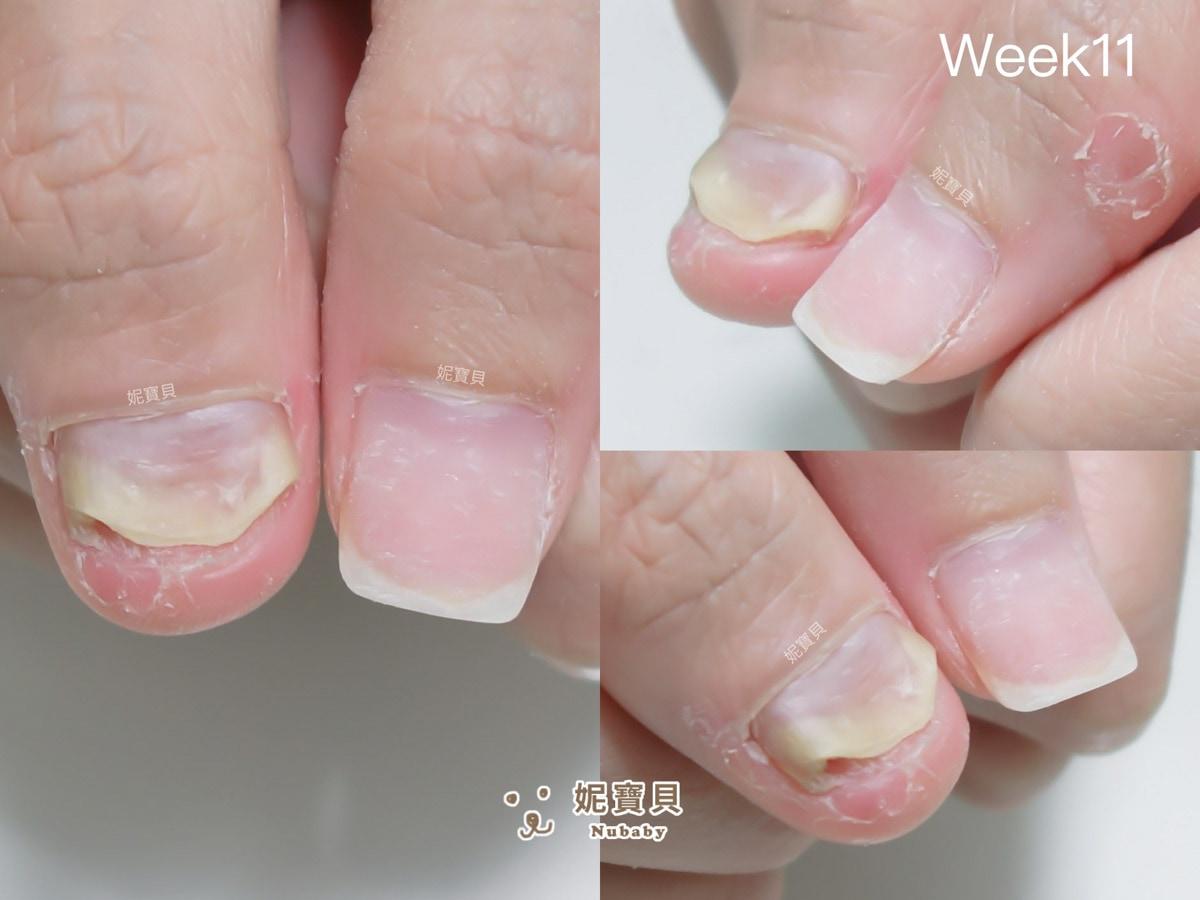 指甲短又寬 短短11週好好保護 甲床能變長嗎?