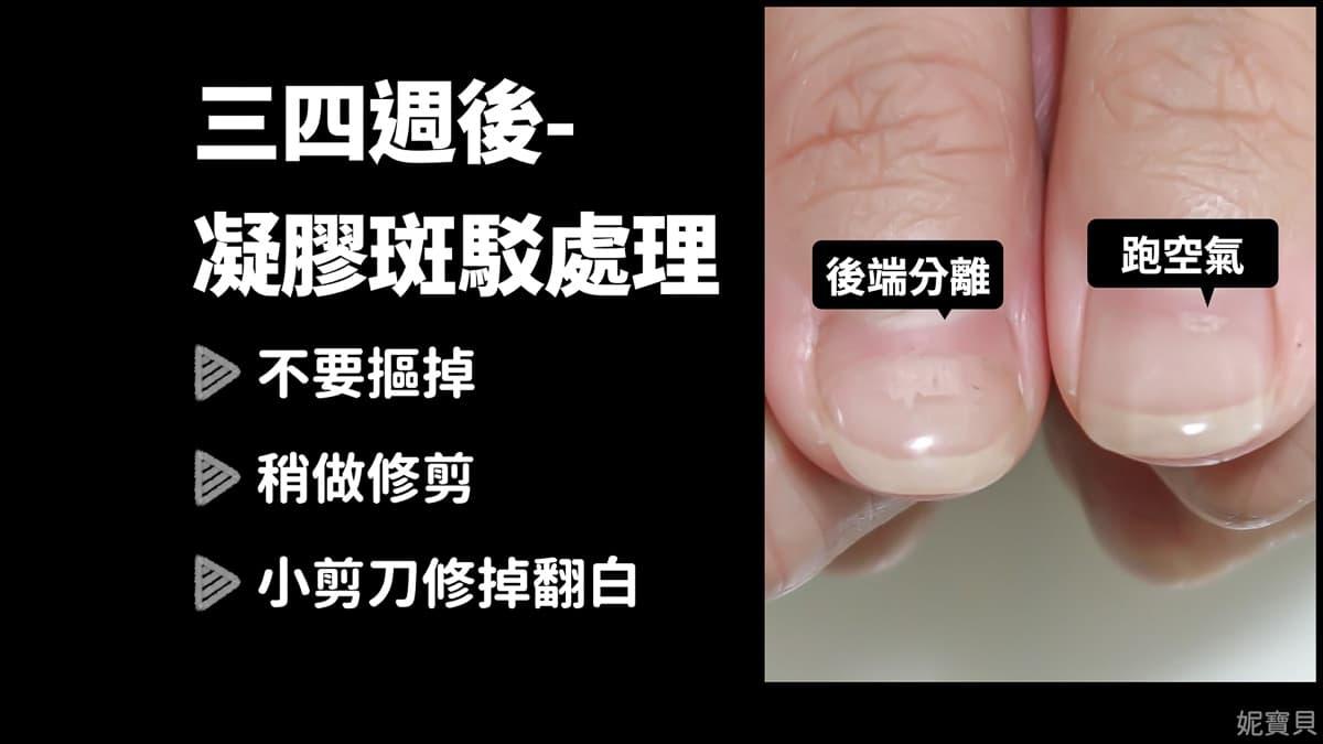 居家基本維護 指甲處理暫停 無法繼續矯正怎麼辦?