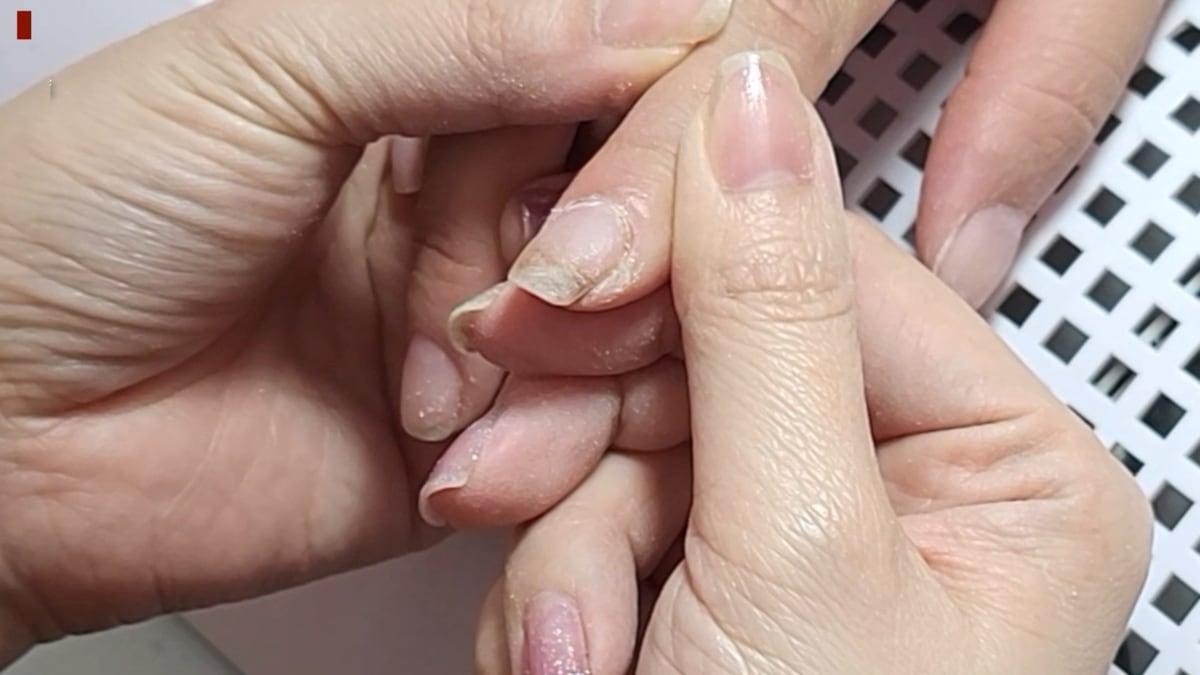 斷裂指甲修補-指甲受傷警急處理 矯正型水晶固定裂甲