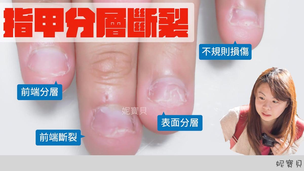 指甲分層斷裂 甲面太短 指甲脆裂