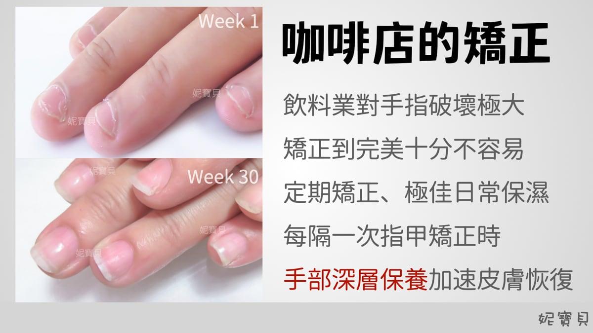 指肉腫脹 影響甲型-咖啡店指尖紅腫 超短的扇形指甲