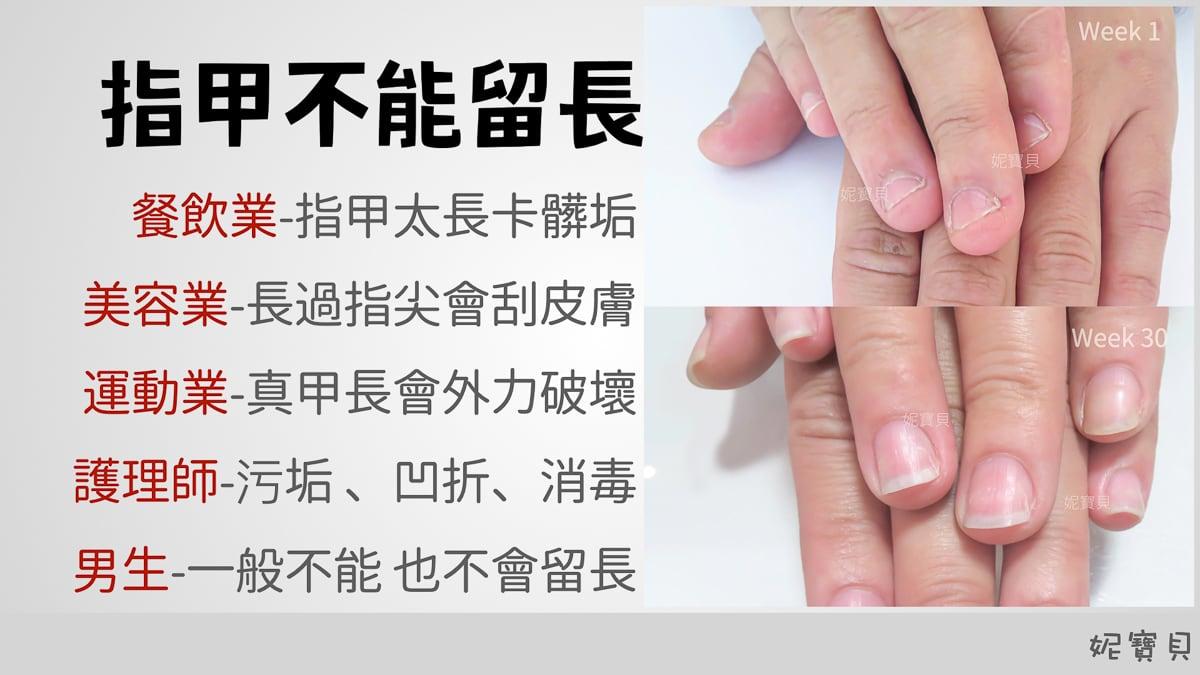 指甲不能留長 可以調整甲型嗎? 短指甲可以處理嗎?