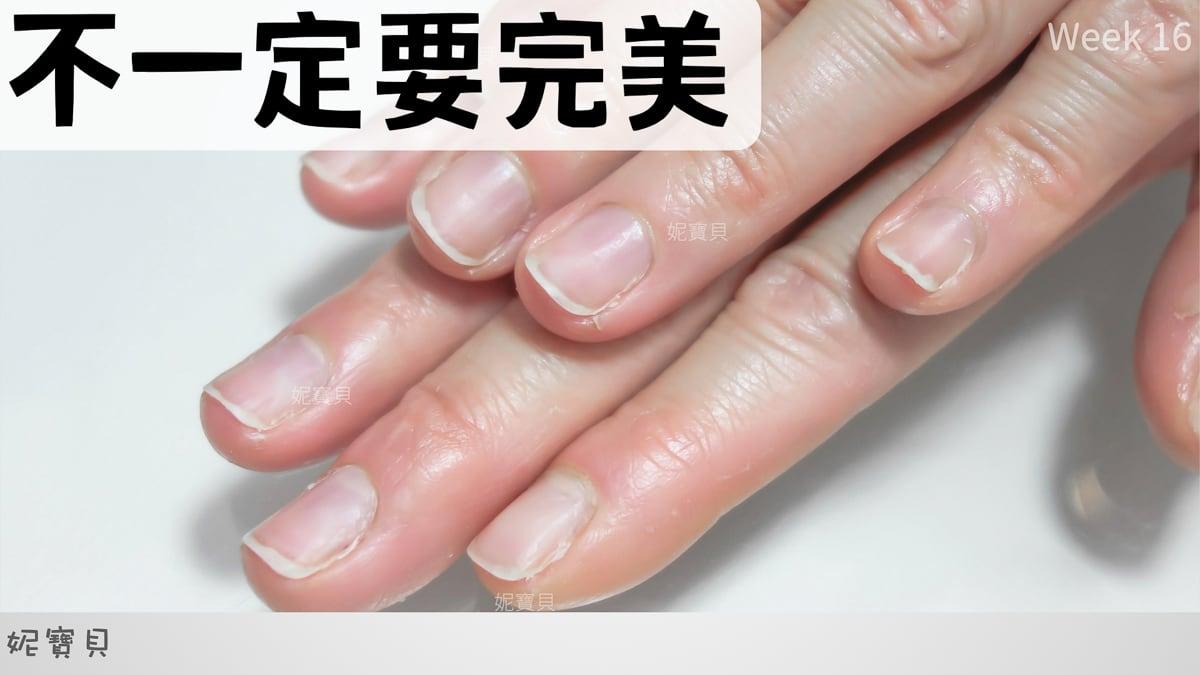 手爛到不行-爛指甲的困擾 爛手指開會的恐懼