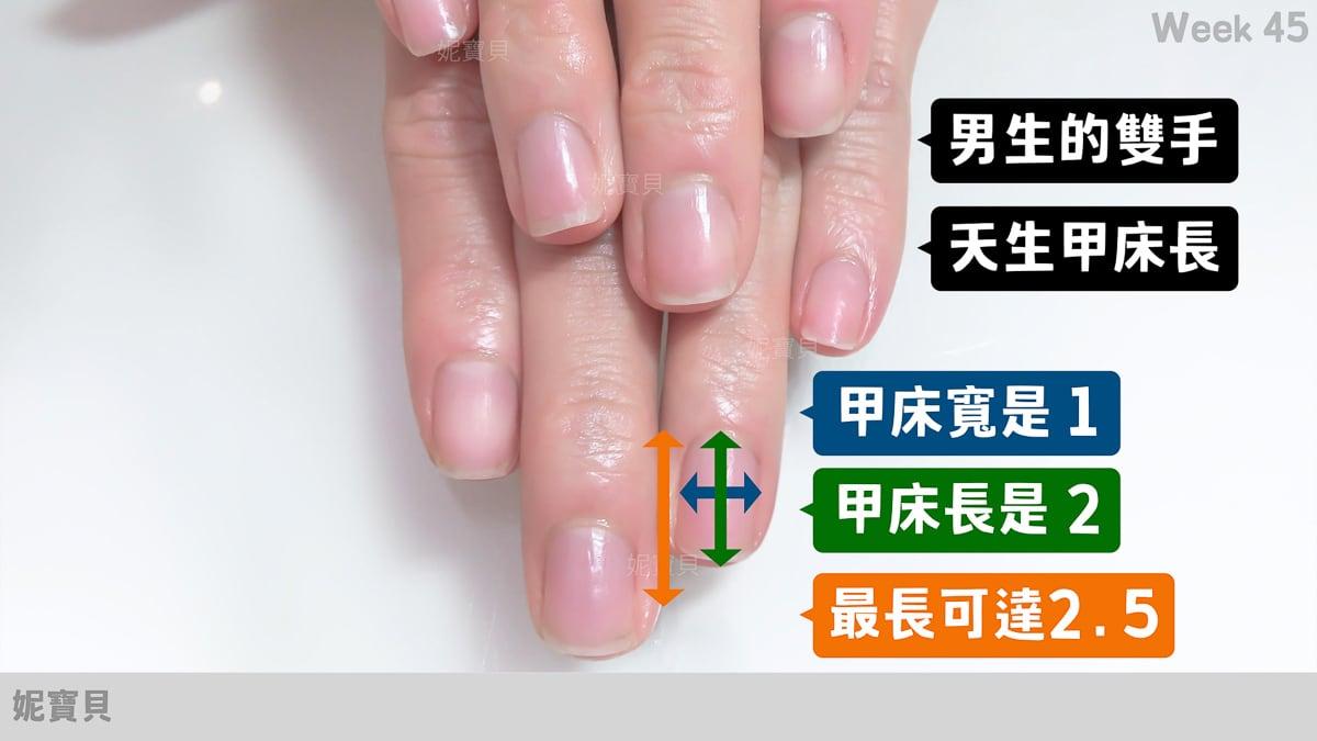 改變指甲形狀 指緣變化超大的新竹男生